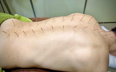 夾脊の刺鍼法